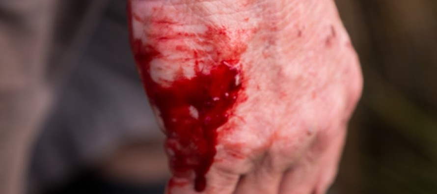 """""""Attenti alla truffa della mano sanguinante"""". Truffe anche nell'Agro Sarnese Nocerino"""
